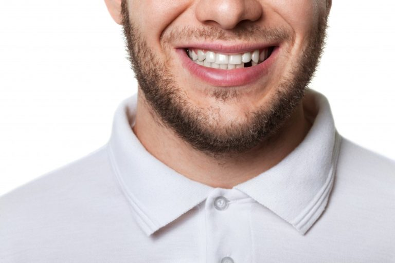 man with a missing tooth
