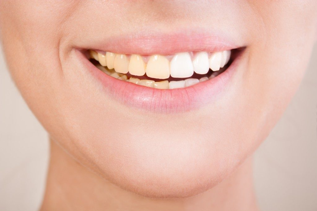 person smiling showing a white set of teeth