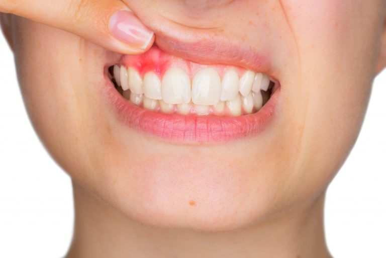 Inflamed upper gums of woman